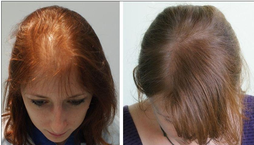 خمس زيوت طبيعية لمنع تساقط الشعر و تلفه