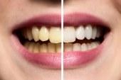تبييض الأسنان بوصفات طبيعية في المنزل